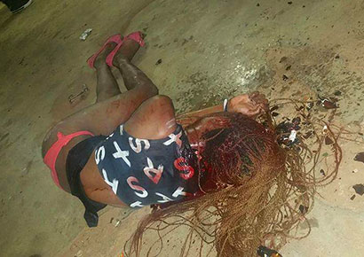 Tshifhiwa Ramurunzi after being attacked on Thursday
