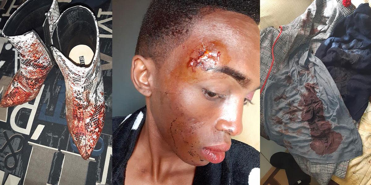 Mpilo Ndlangamandla, a young LGBTQ man, was severely beaten