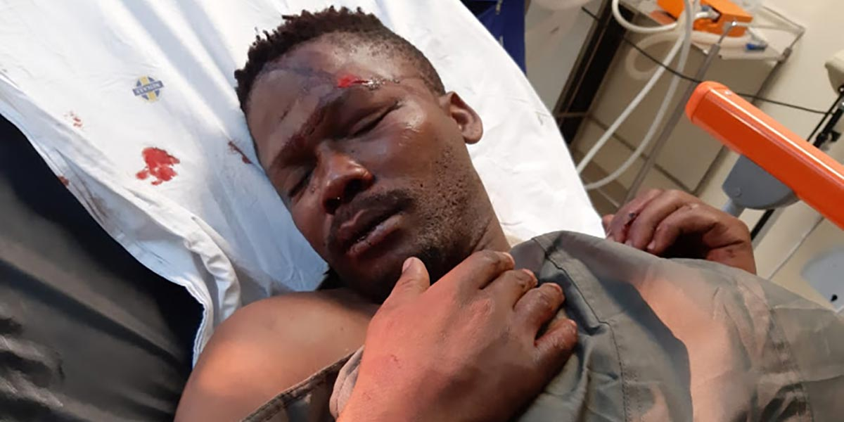 Sisonke Yafele was the victim of suspected hate crime